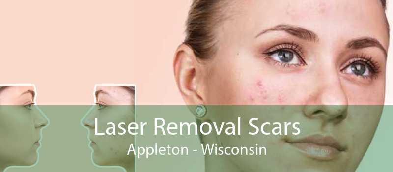 Laser Removal Scars Appleton - Wisconsin