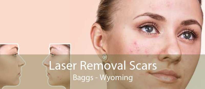 Laser Removal Scars Baggs - Wyoming