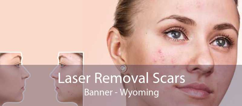 Laser Removal Scars Banner - Wyoming