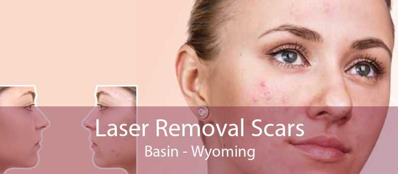Laser Removal Scars Basin - Wyoming