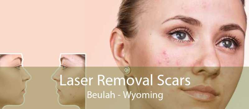 Laser Removal Scars Beulah - Wyoming