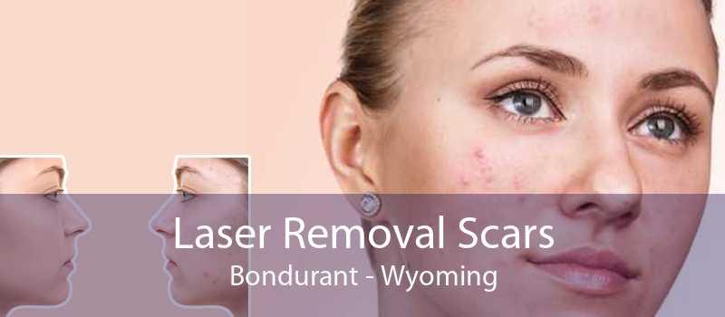 Laser Removal Scars Bondurant - Wyoming