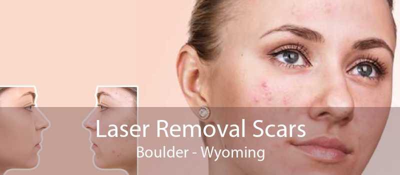 Laser Removal Scars Boulder - Wyoming