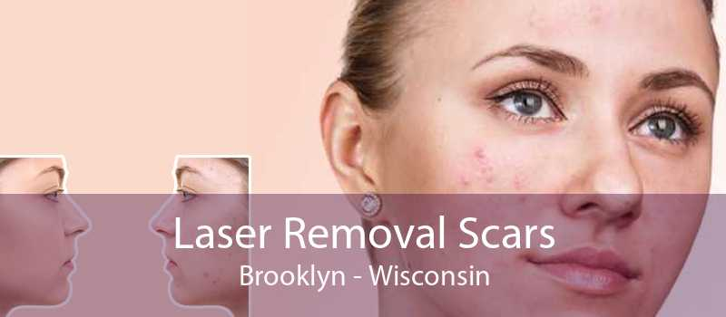 Laser Removal Scars Brooklyn - Wisconsin