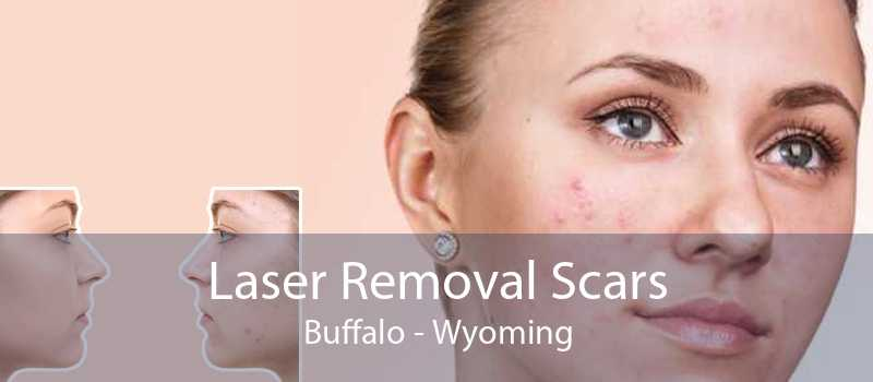 Laser Removal Scars Buffalo - Wyoming