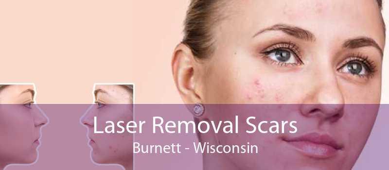 Laser Removal Scars Burnett - Wisconsin