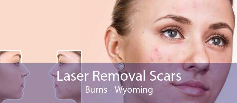 Laser Removal Scars Burns - Wyoming
