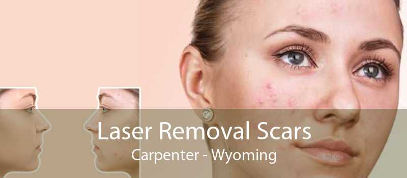 Laser Removal Scars Carpenter - Wyoming