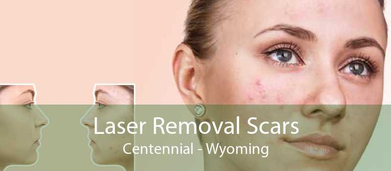 Laser Removal Scars Centennial - Wyoming