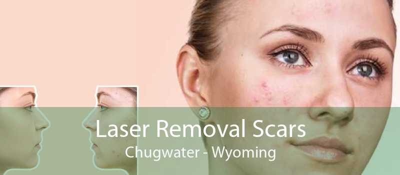 Laser Removal Scars Chugwater - Wyoming