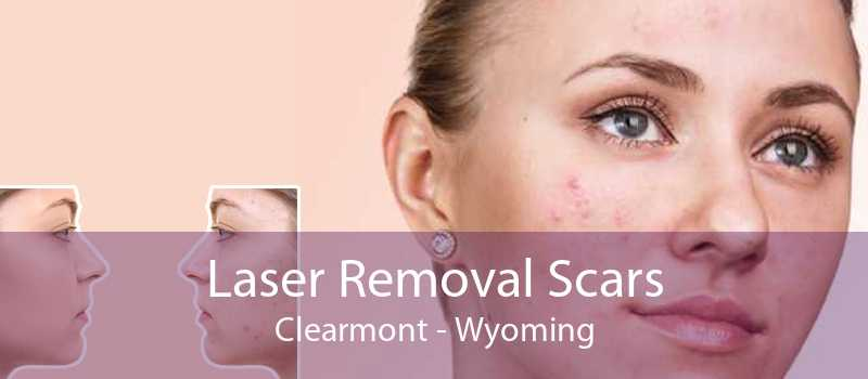 Laser Removal Scars Clearmont - Wyoming