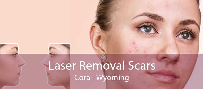 Laser Removal Scars Cora - Wyoming