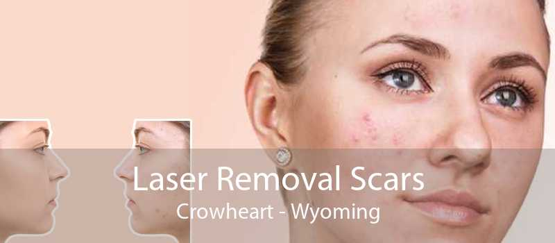 Laser Removal Scars Crowheart - Wyoming