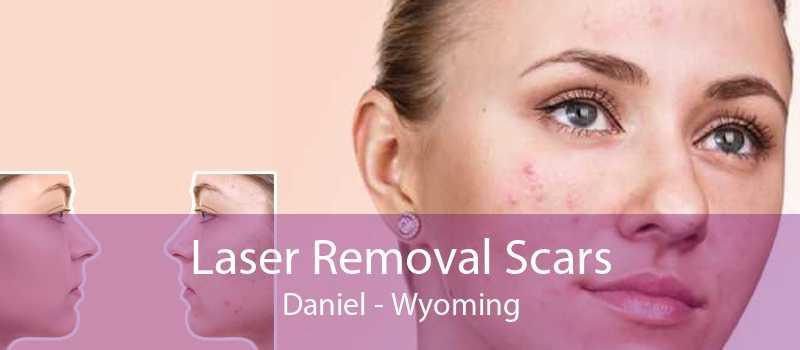 Laser Removal Scars Daniel - Wyoming