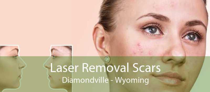 Laser Removal Scars Diamondville - Wyoming