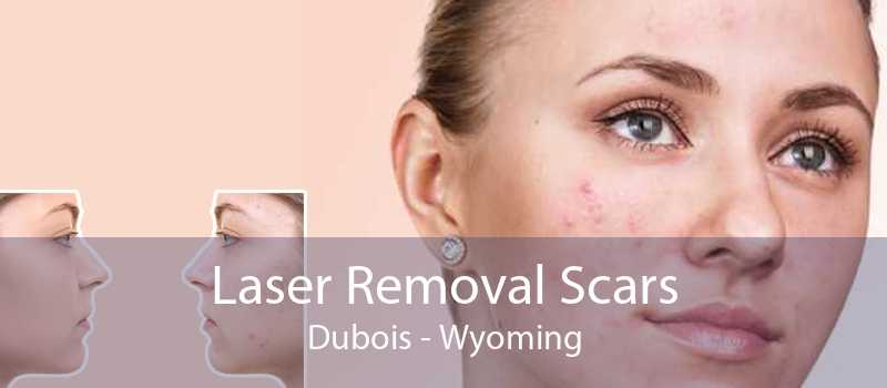 Laser Removal Scars Dubois - Wyoming