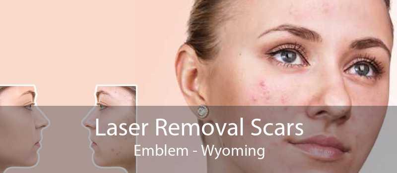 Laser Removal Scars Emblem - Wyoming