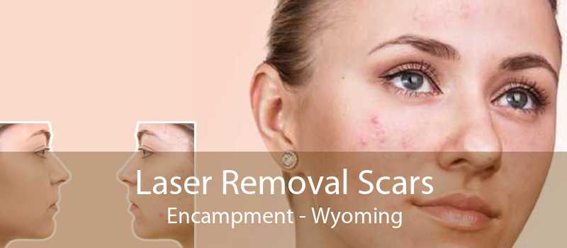Laser Removal Scars Encampment - Wyoming