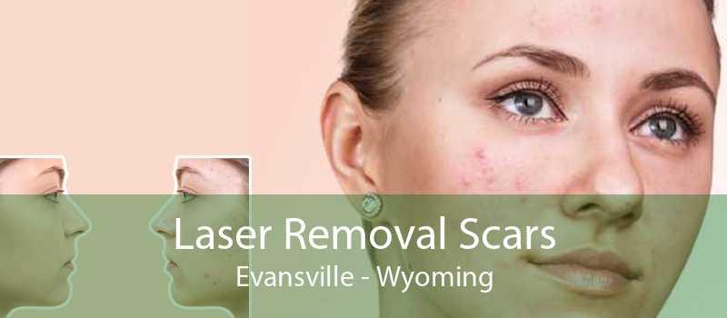Laser Removal Scars Evansville - Wyoming