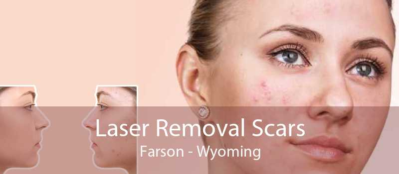 Laser Removal Scars Farson - Wyoming