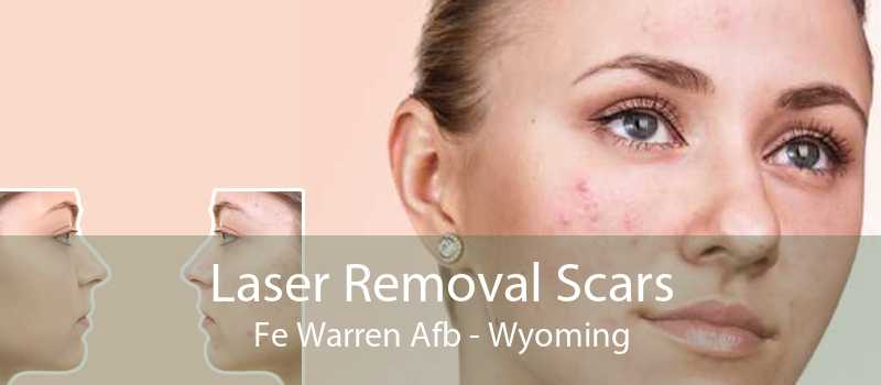Laser Removal Scars Fe Warren Afb - Wyoming