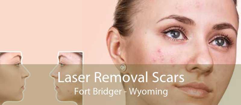 Laser Removal Scars Fort Bridger - Wyoming