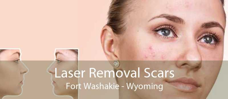 Laser Removal Scars Fort Washakie - Wyoming
