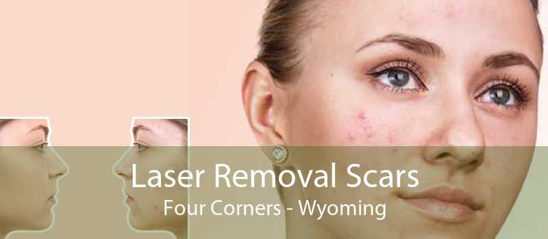 Laser Removal Scars Four Corners - Wyoming