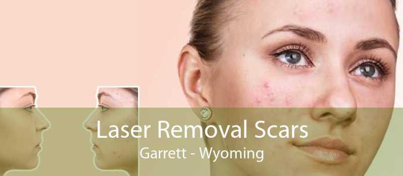 Laser Removal Scars Garrett - Wyoming