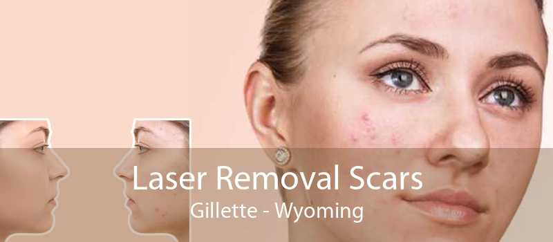 Laser Removal Scars Gillette - Wyoming