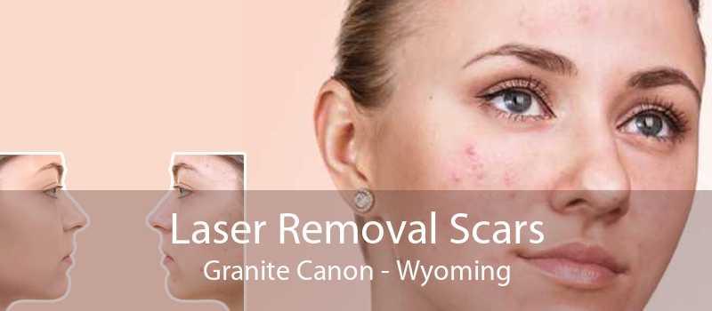 Laser Removal Scars Granite Canon - Wyoming