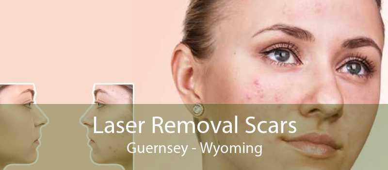 Laser Removal Scars Guernsey - Wyoming