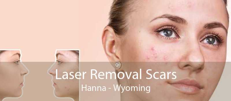 Laser Removal Scars Hanna - Wyoming