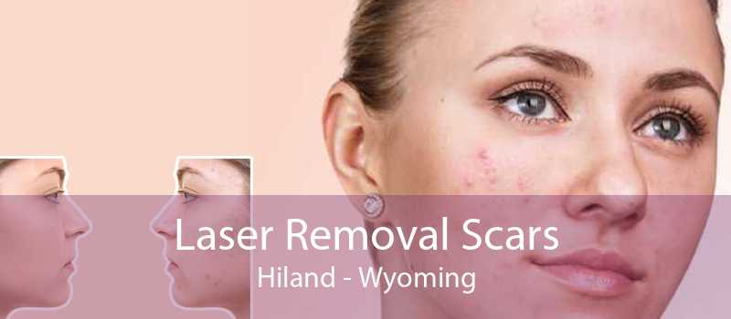 Laser Removal Scars Hiland - Wyoming