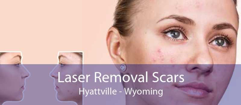 Laser Removal Scars Hyattville - Wyoming