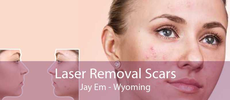 Laser Removal Scars Jay Em - Wyoming