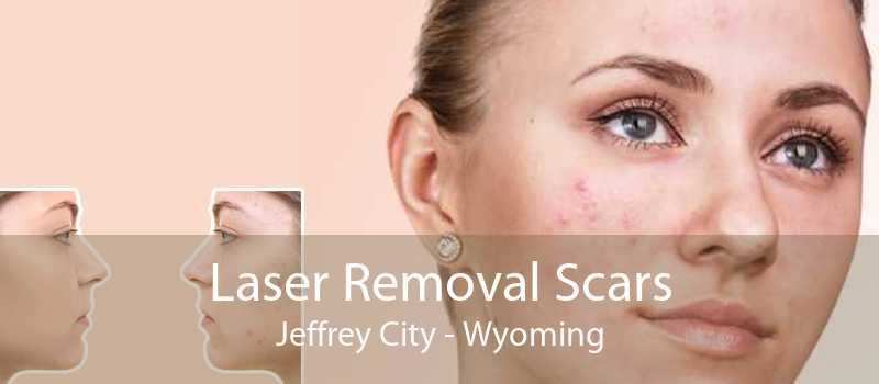 Laser Removal Scars Jeffrey City - Wyoming
