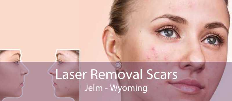 Laser Removal Scars Jelm - Wyoming