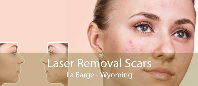 Laser Removal Scars La Barge - Wyoming