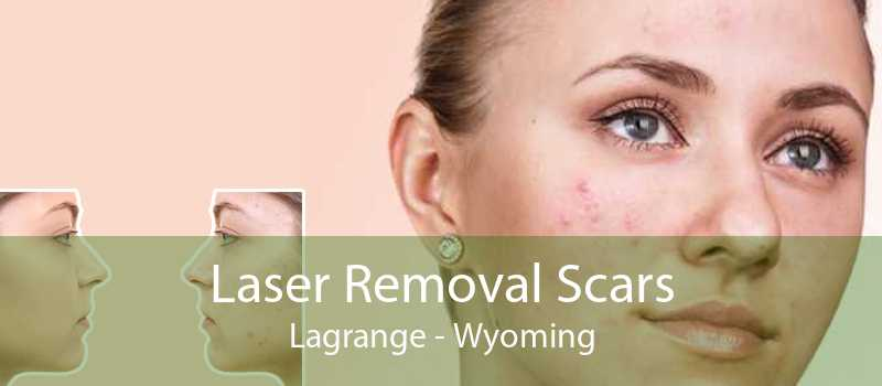 Laser Removal Scars Lagrange - Wyoming
