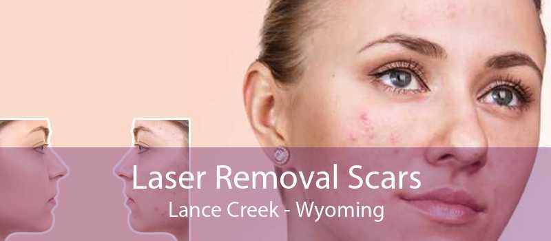 Laser Removal Scars Lance Creek - Wyoming