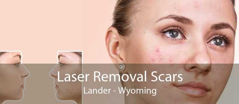 Laser Removal Scars Lander - Wyoming