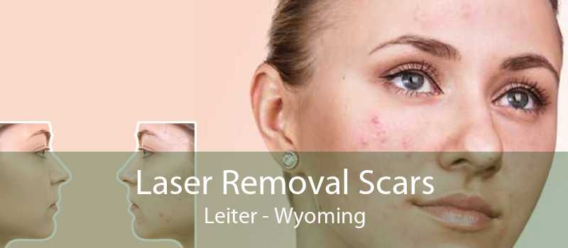 Laser Removal Scars Leiter - Wyoming
