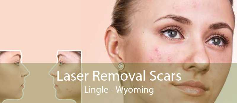 Laser Removal Scars Lingle - Wyoming