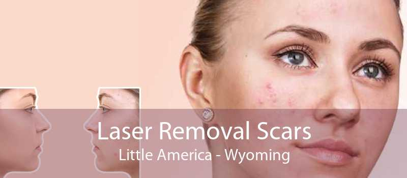 Laser Removal Scars Little America - Wyoming