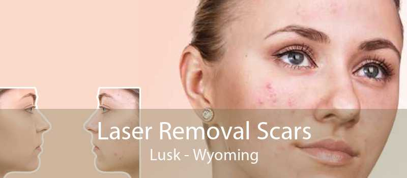Laser Removal Scars Lusk - Wyoming