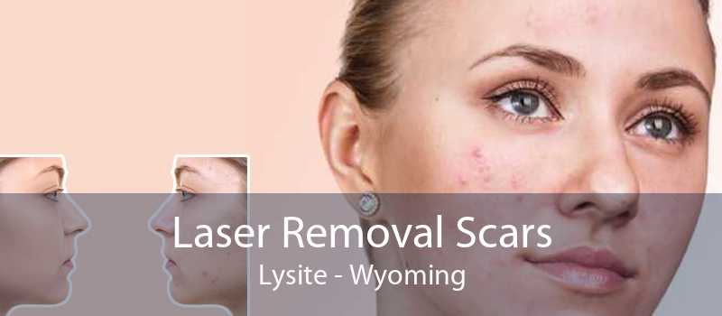 Laser Removal Scars Lysite - Wyoming