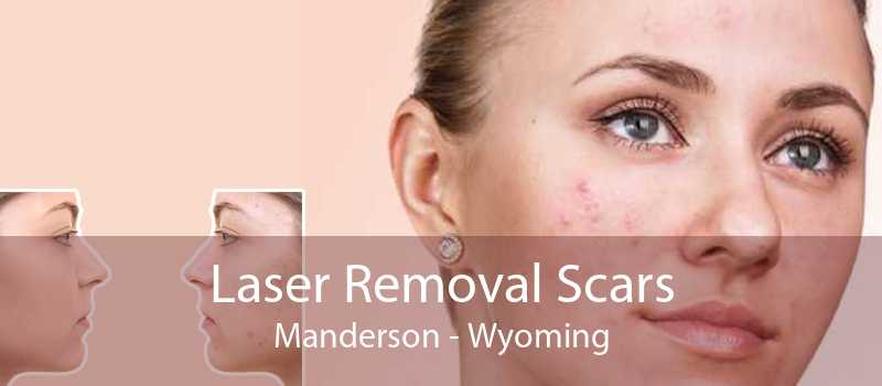 Laser Removal Scars Manderson - Wyoming