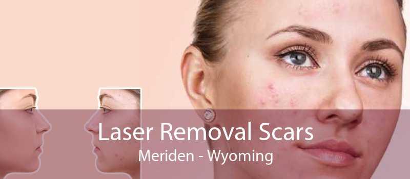 Laser Removal Scars Meriden - Wyoming