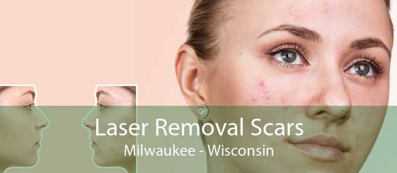 Laser Removal Scars Milwaukee - Wisconsin